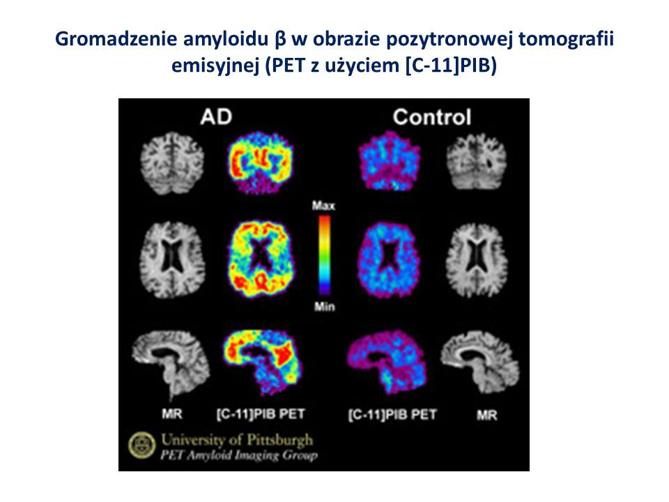 Gromadzenie amyloidu β w obrazie pozytronowej tomografii emisyjnej (PET z użyciem [C-11]PIB)